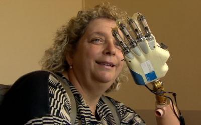 In Italia la prima donna con mano bionica dotata di tatto