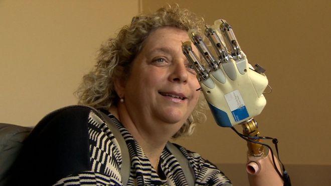 Almerina Mascarello è la prima donna con una mano bionica che dispone della sensazione del tatto