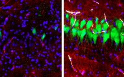 Riattivate cellule cerebrali morte, cosa che potrebbe cambiare la nostra visione della morte