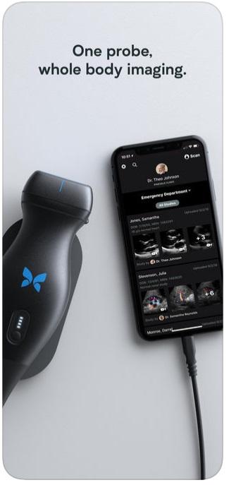 Butterfly iQ Ultrasound